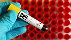 У 35-летнего девственника из Иркутска неожиданно выявили ВИЧ