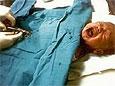 В США стали реже обрезать новорожденных мальчиков