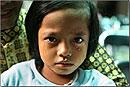 ВОЗ: до 140 млн женщин в мире пострадали от обрезания