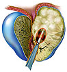 Разработан безоперационный метод лечения доброкачественной гиперплазии предстательной железы
